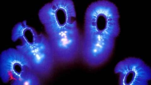What is Bio Resonance?