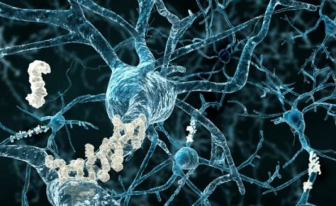 This New Breakthough Alzheimer's Treatment Fully Restores Memory Function