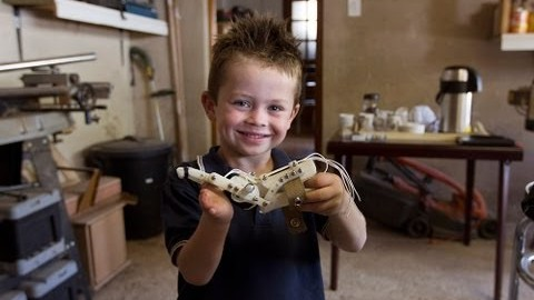 The Boy's Hand That Was Printed: The Innovative Technology That Is Changing The World