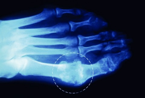 How To Rid Your Joints Of Uric Acid Crystals (Gout & Joint Pain)