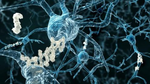 Alzheimer's Disease Completely Reversed In One Week In Mice Using New Protein Injection