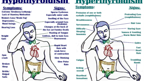 All Signs, Symptoms, Triggers, & Treatments For Hypo & Hyperthyroidism