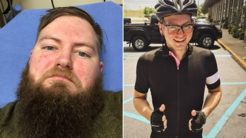 Before & After Pictures Show The Effects of Too Much Alcohol & What Happens When You Quit