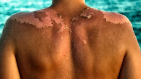 How Sunscreen Could Be Causing Skin Cancer, Not The Sun